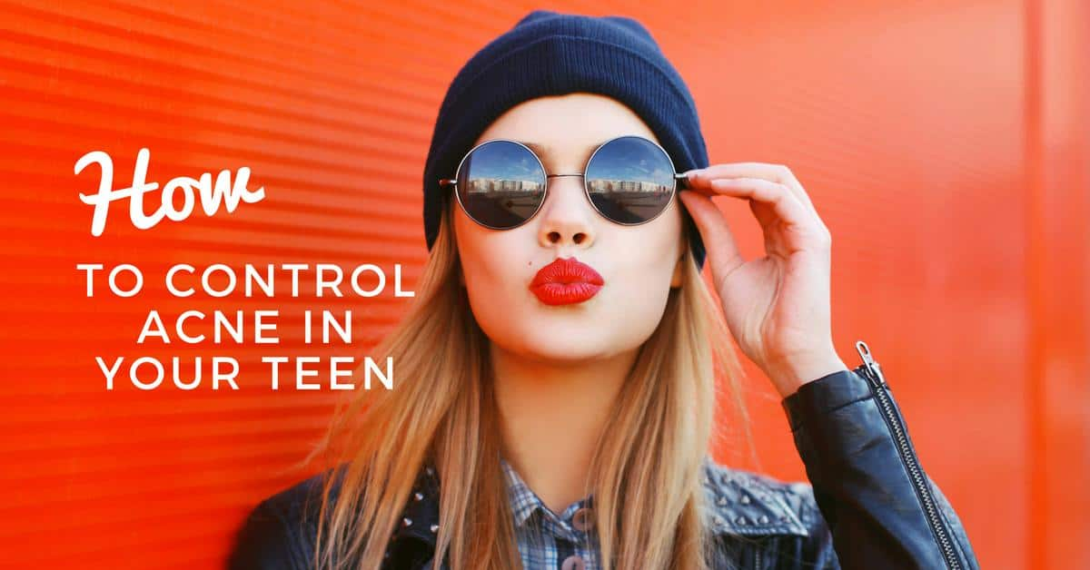 How to Control Acne in Your Teen